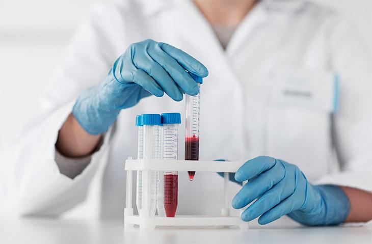 O que é e como é realizada a hematologia laboratorial?